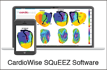 CardioWise_Squeeze